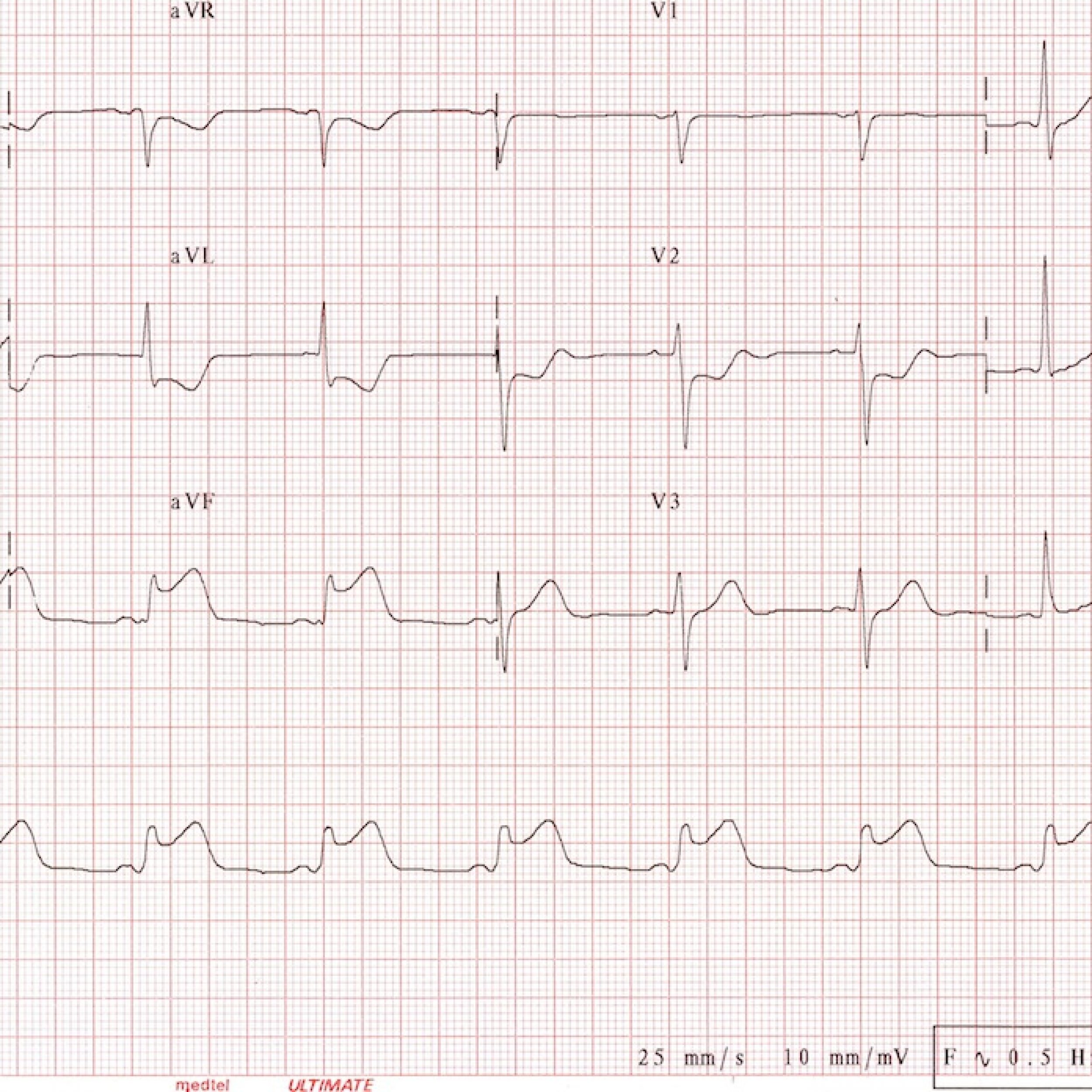 12 lead ecg images Cached